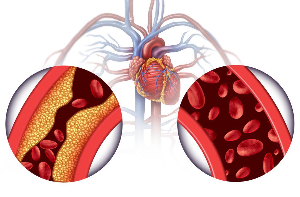 hart en vaatziekten als gevolg van overgewicht